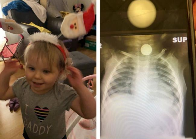 Sofia-Grace Hill and an X-ray of the battery stuck in her throat for months. Pictures: SWNS