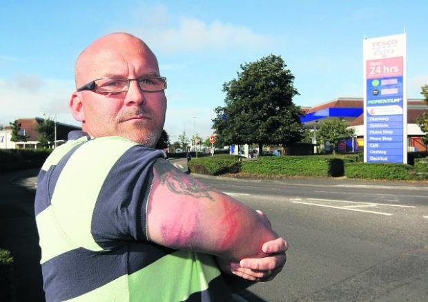 WOUNDS Eric Rawlinson outside Tesco in Ocotal Way
