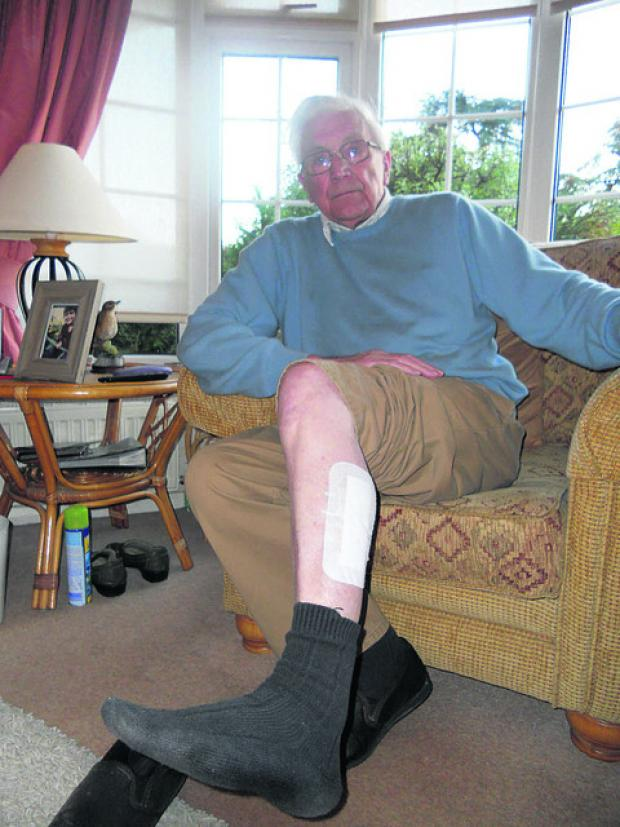 This Is Wiltshire: Eric Oakford had to have four stitches in his leg