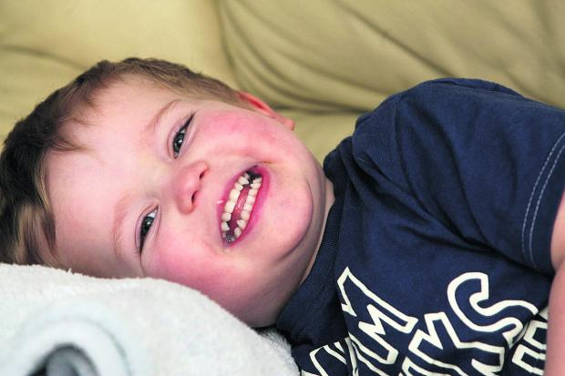 This Is Wiltshire: Two-year-old Kieran Lower, who had the operation to fix his tongue