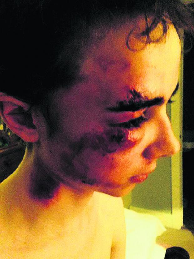 This Is Wiltshire: Ollie Pike, 15, needed stitches to a wound above his eye after he was thrown from his bike