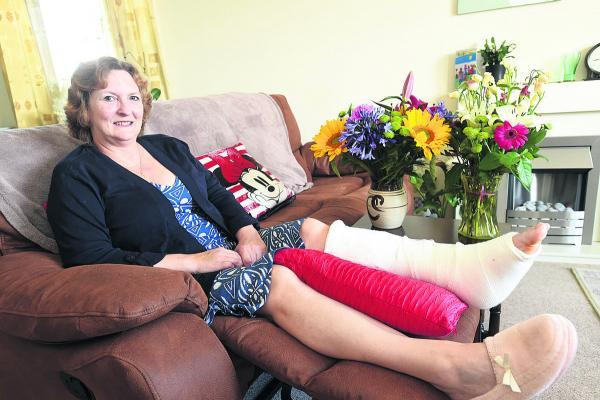 This Is Wiltshire: Karen Fletcher recovers at home after two operations on her ankle