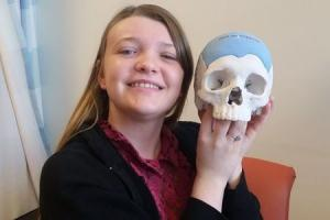 Tiffany Cullern with the 3D printed skull that was rebuilt for her by doctors after she had to have part of hers removed due to a tumour.